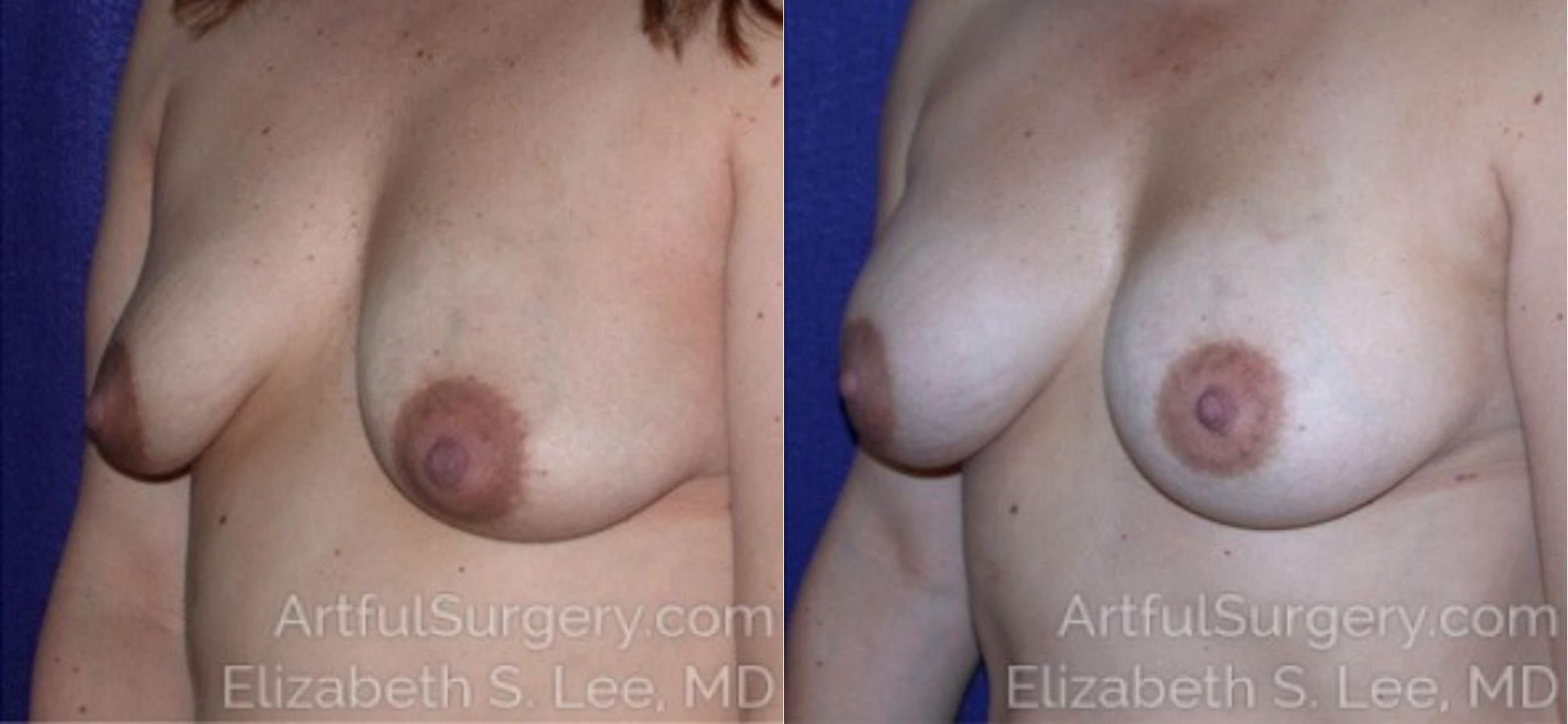 Breast Augmentation Before & After Patient #6830