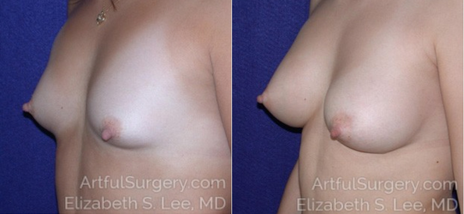 Breast Augmentation Before & After Patient #6730