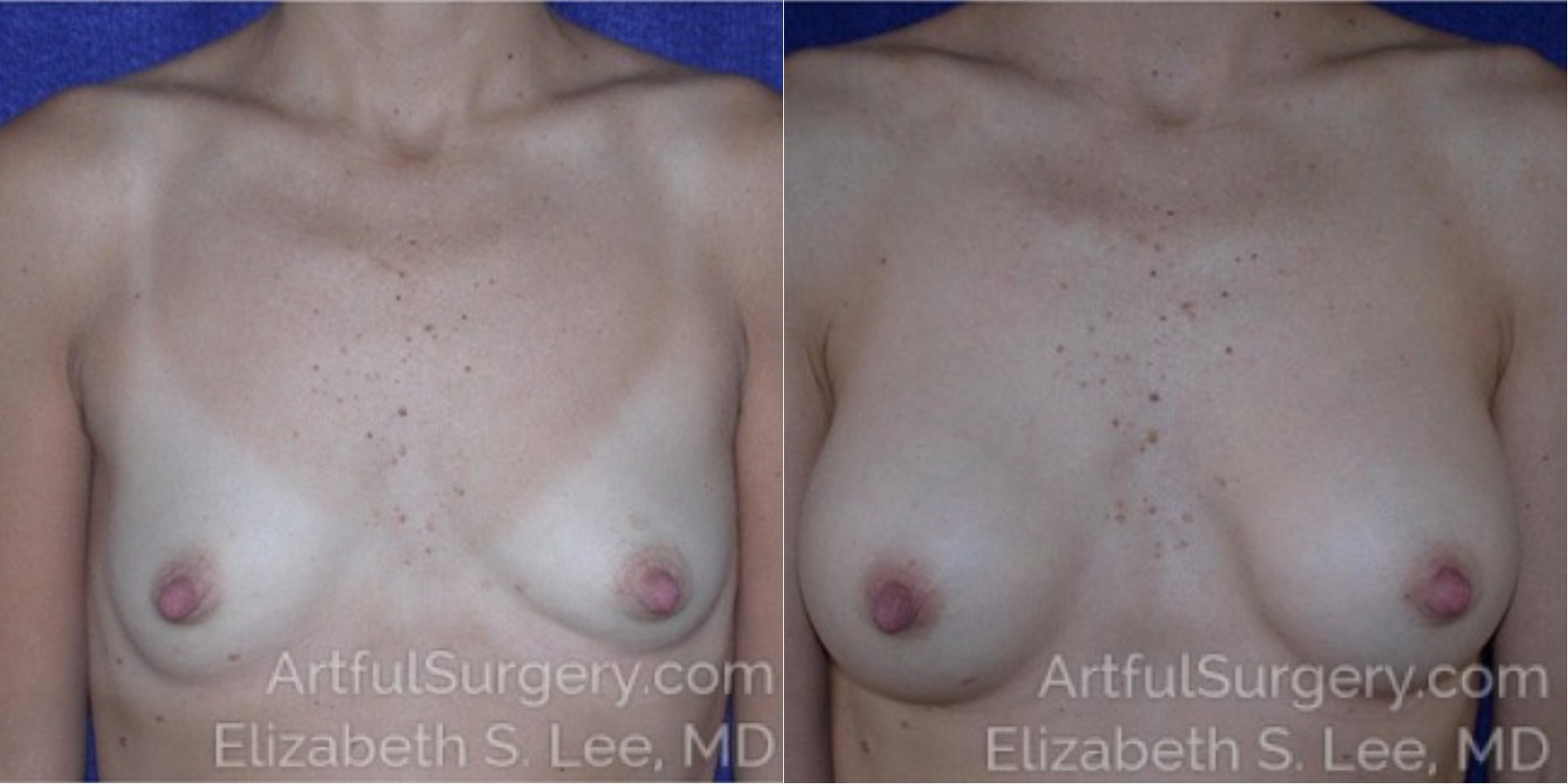 Breast Augmentation Before & After Patient #6780