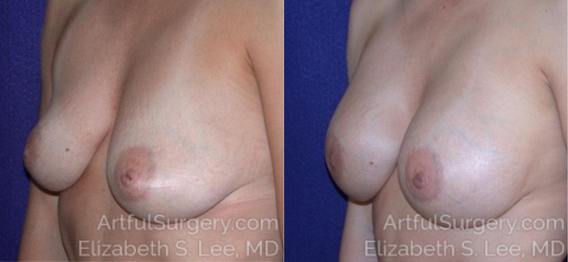 Breast Augmentation Before & After Patient #6580