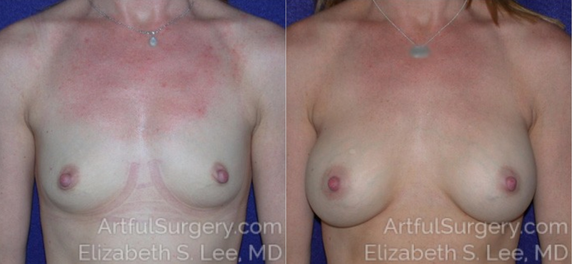Breast Augmentation Before & After Patient #6880