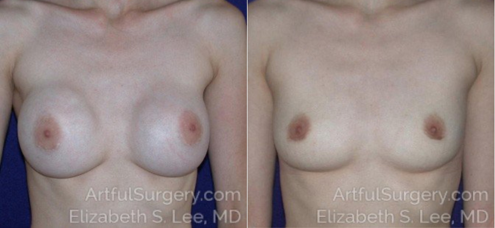 Breast Implant Removal Before & After Patient #4810