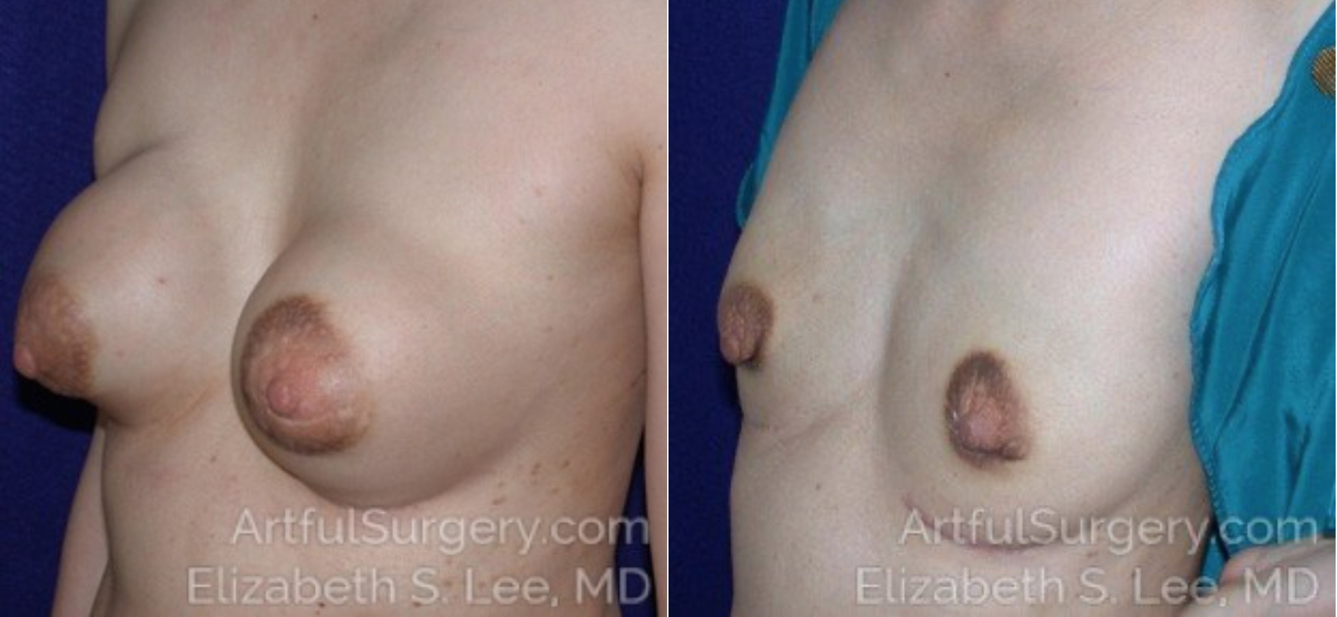 Breast Implant Removal Before & After Patient #4870