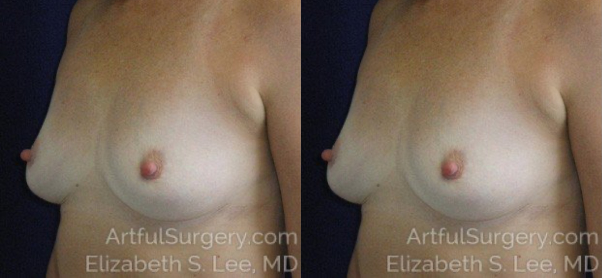 Breast Implant Removal Before & After Patient #5020