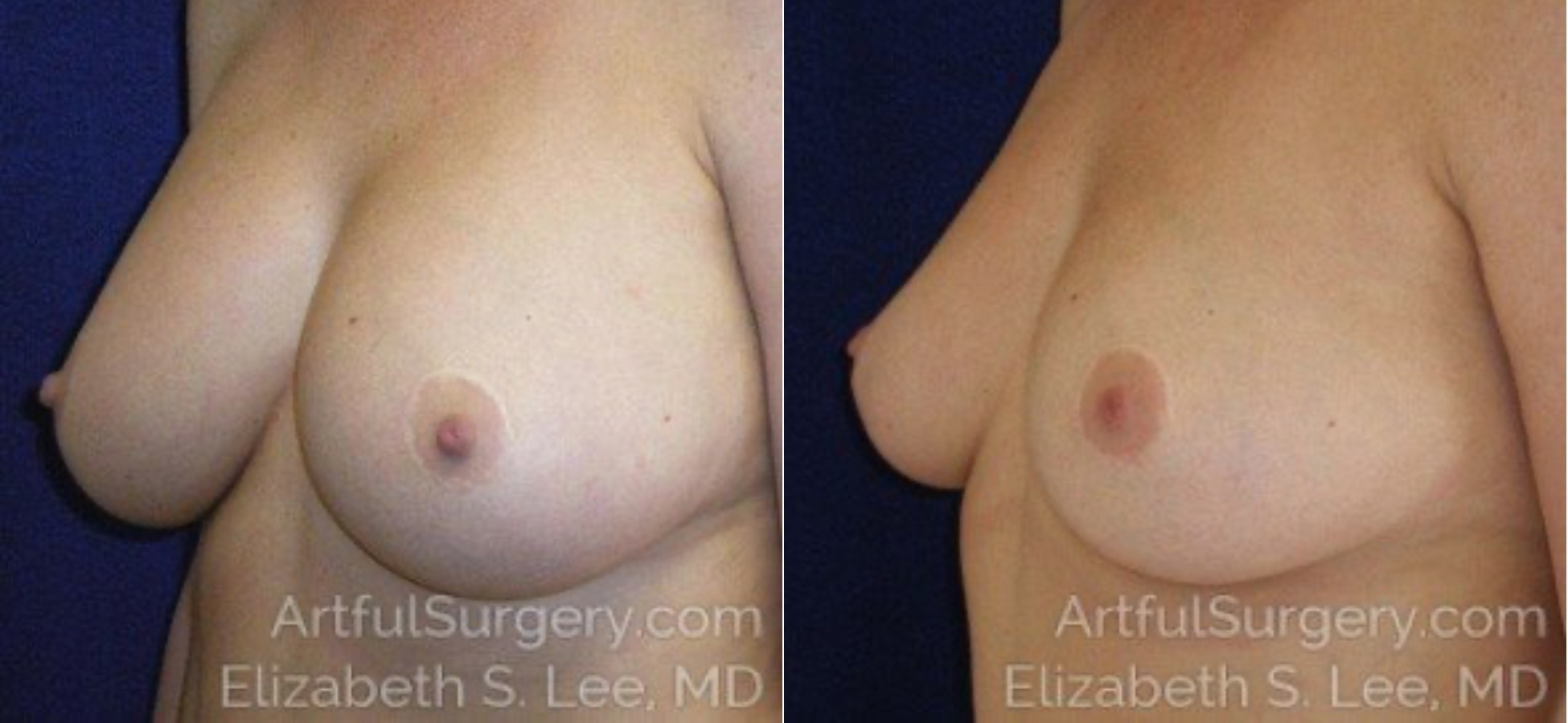 Breast Implant Removal Before & After Patient #4970