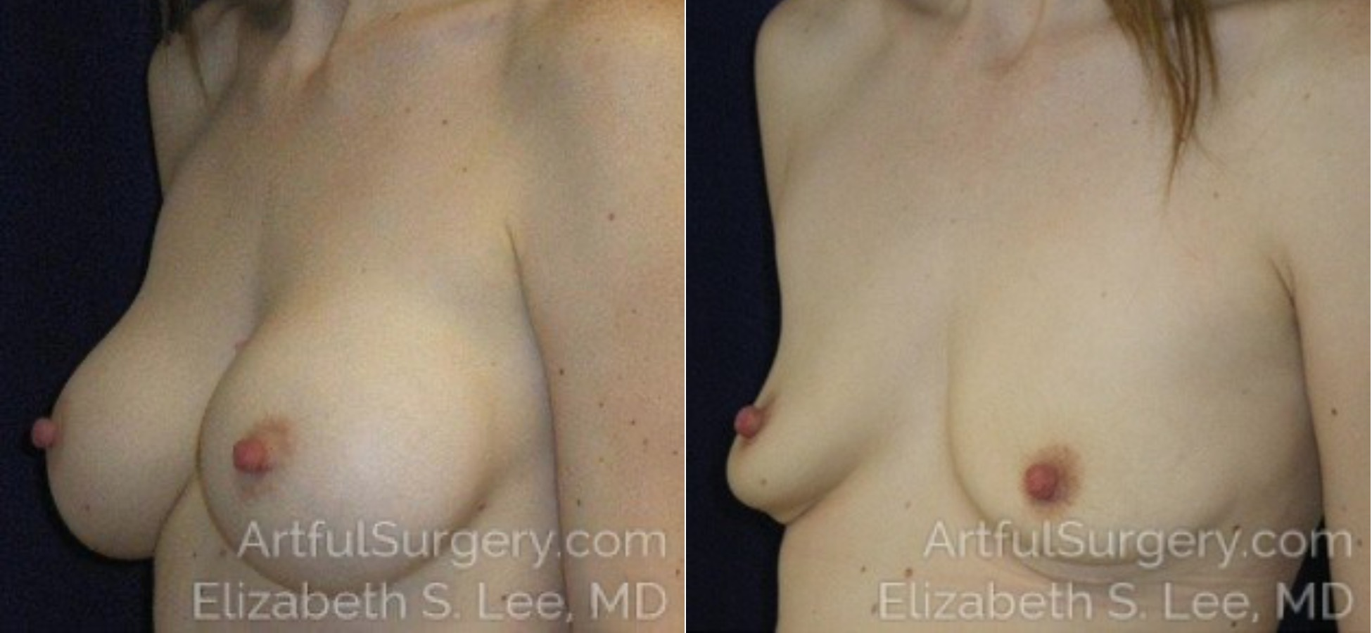 Breast Implant Removal Before & After Patient #5120