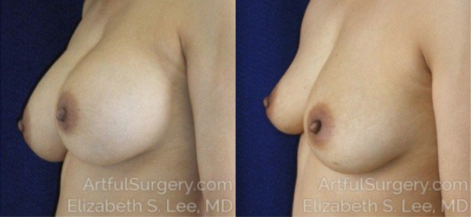 Breast Implant Removal Before & After Patient #5070