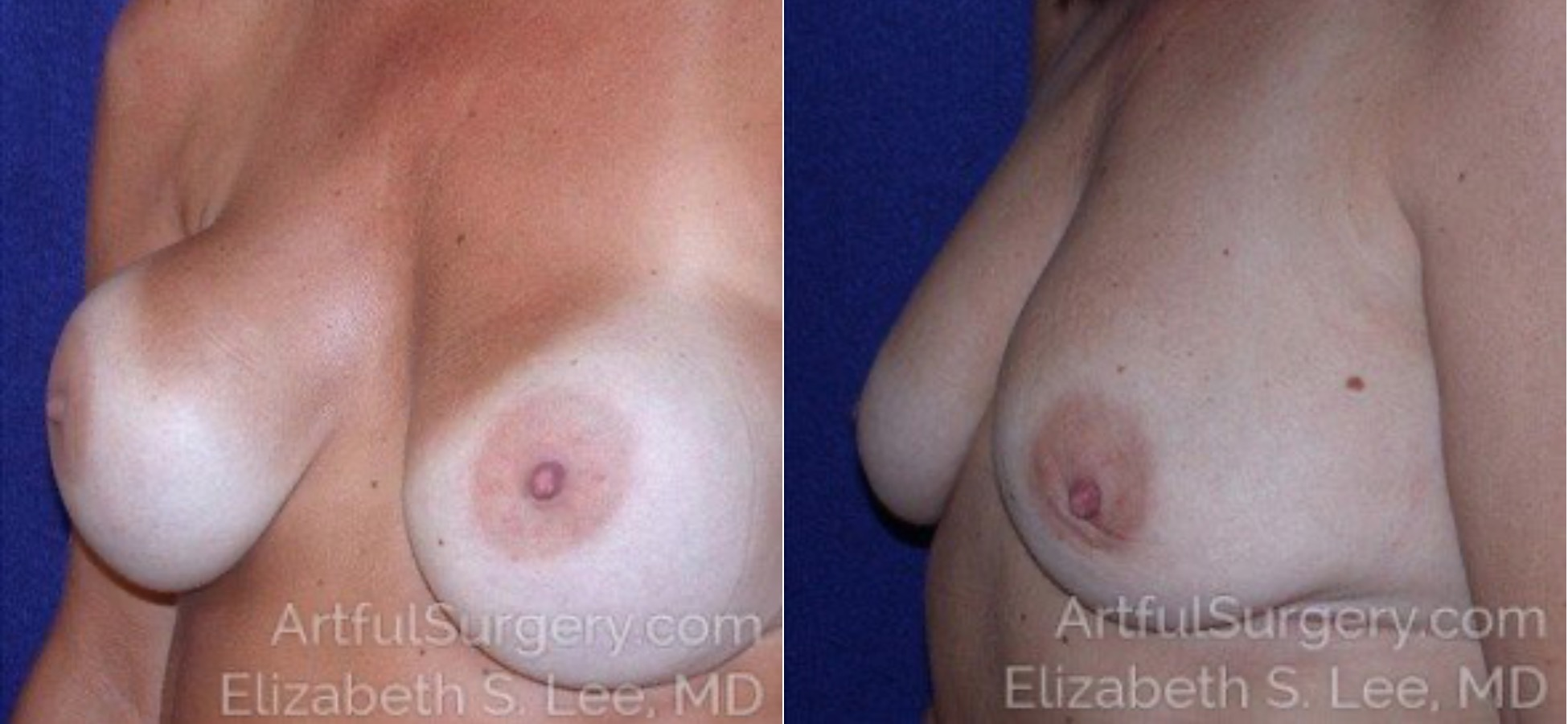 Breast Implant Removal Before & After Patient #4920