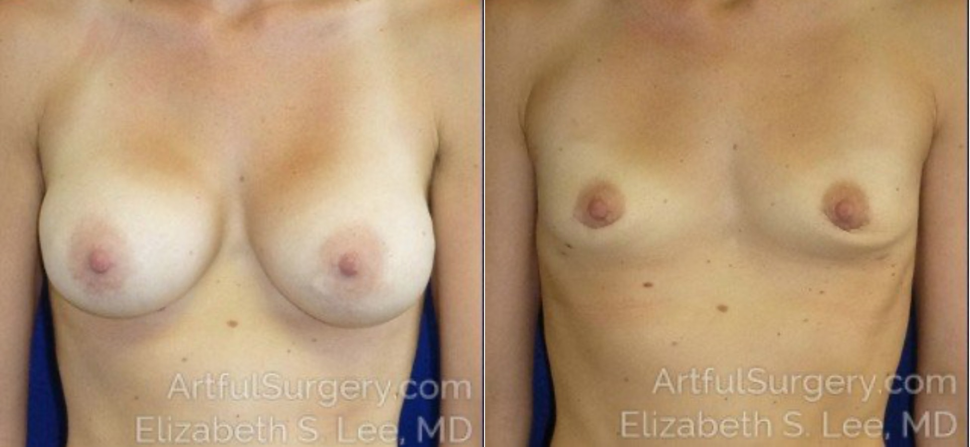 Breast Implant Removal Before & After Patient #5170