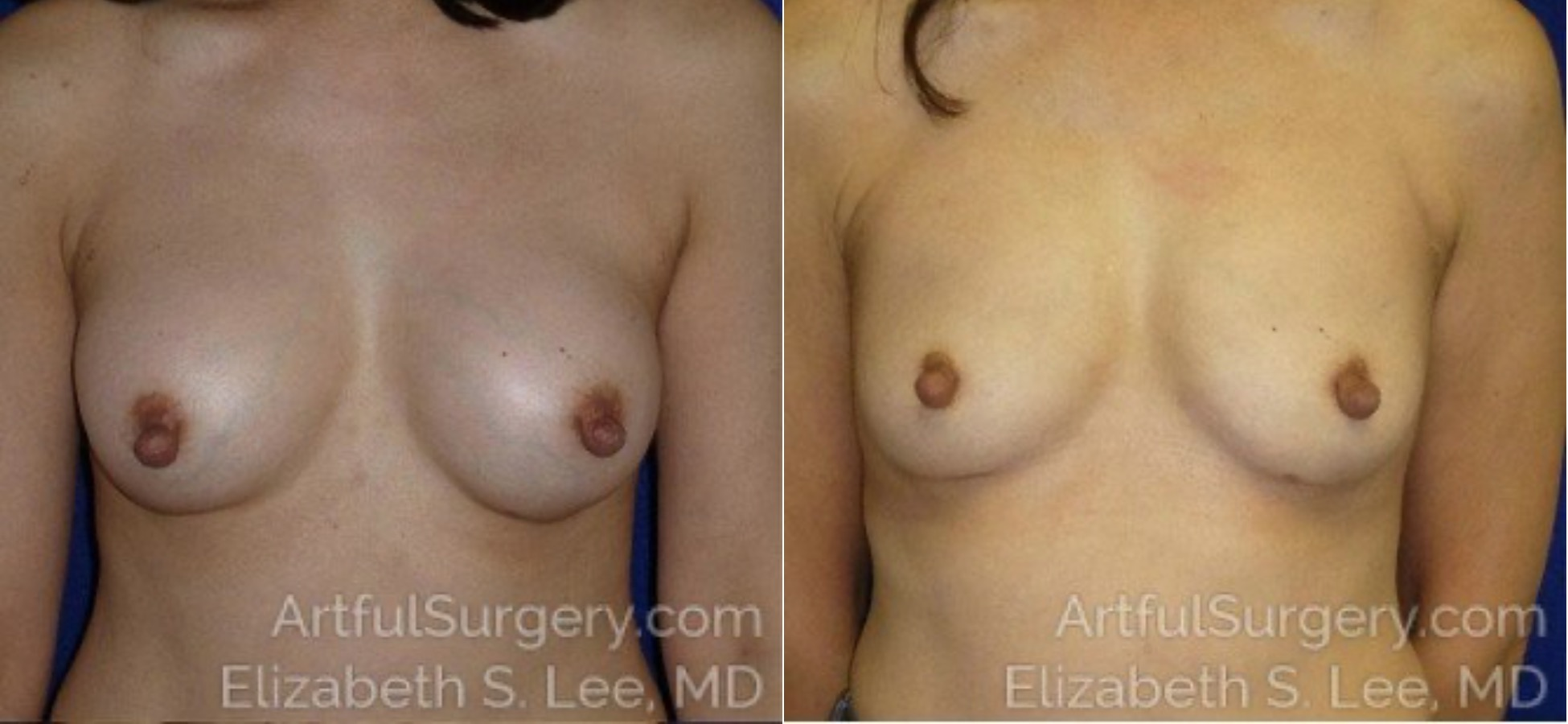 Breast Implant Removal Before & After Patient #5220