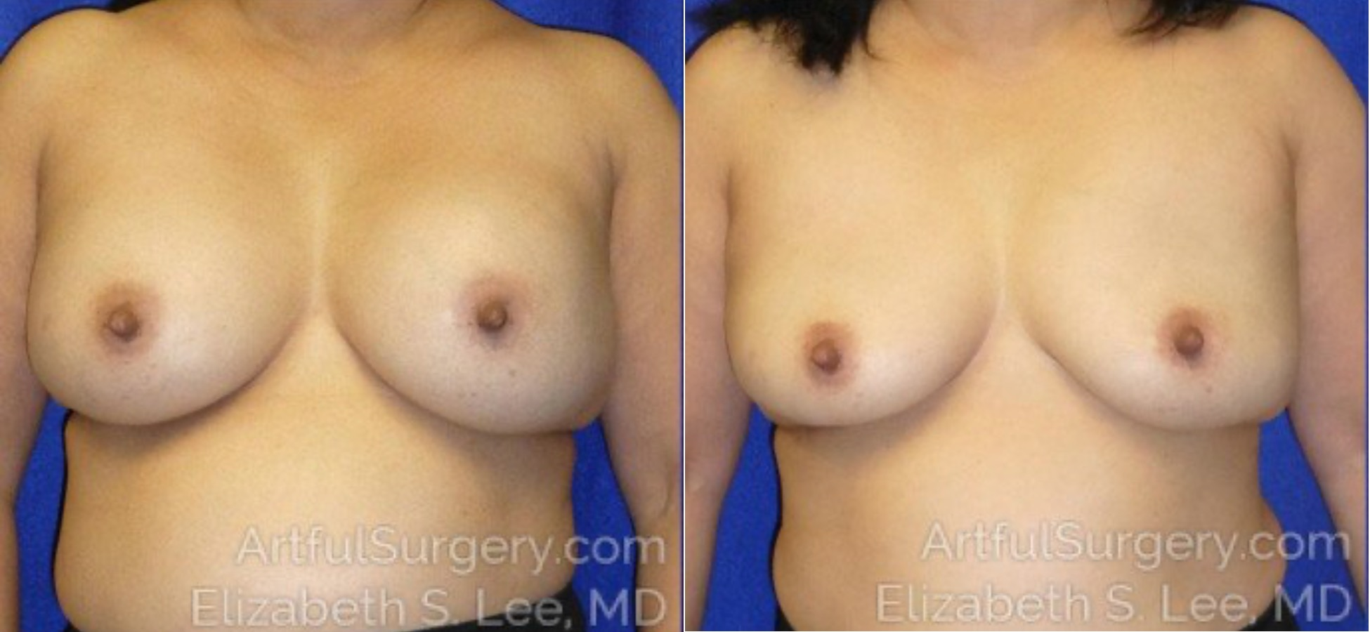 Breast Implant Removal Before & After Patient #5270
