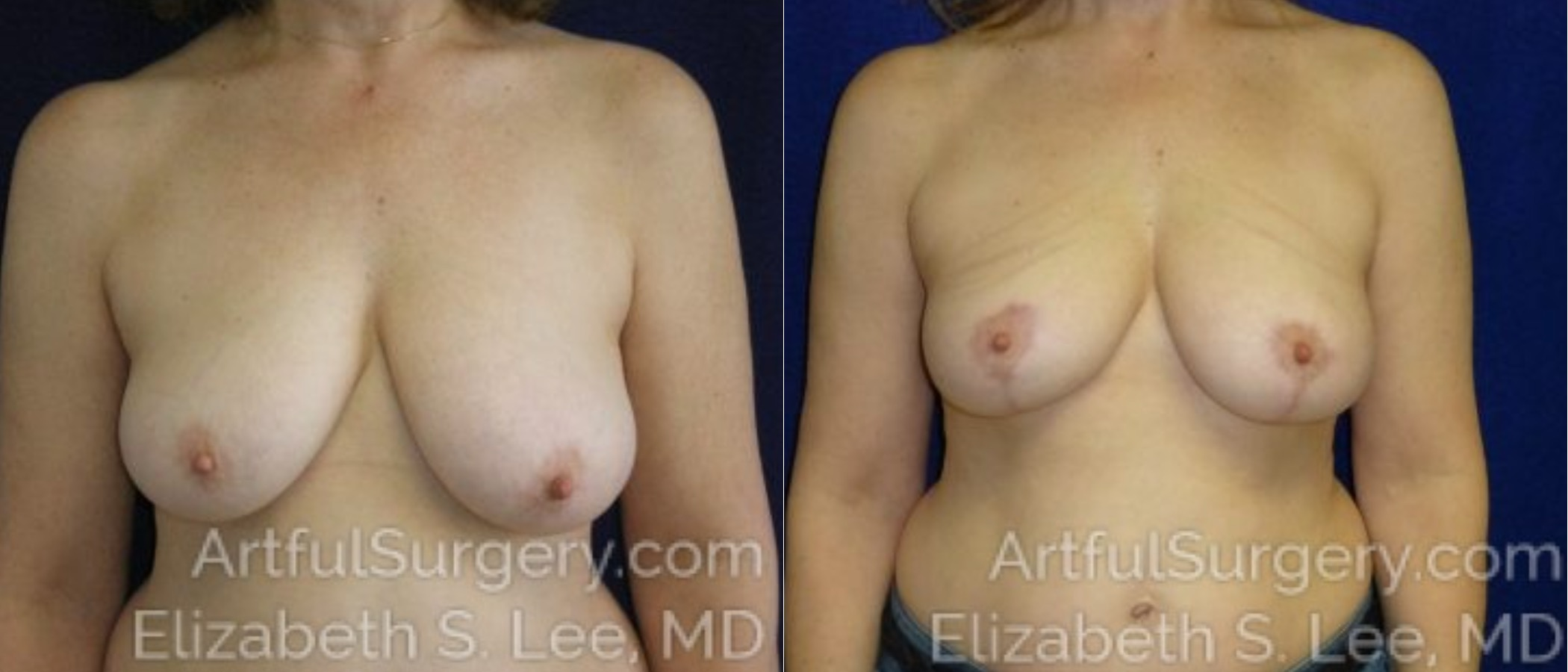 Breast Lift Before & After Patient #1179