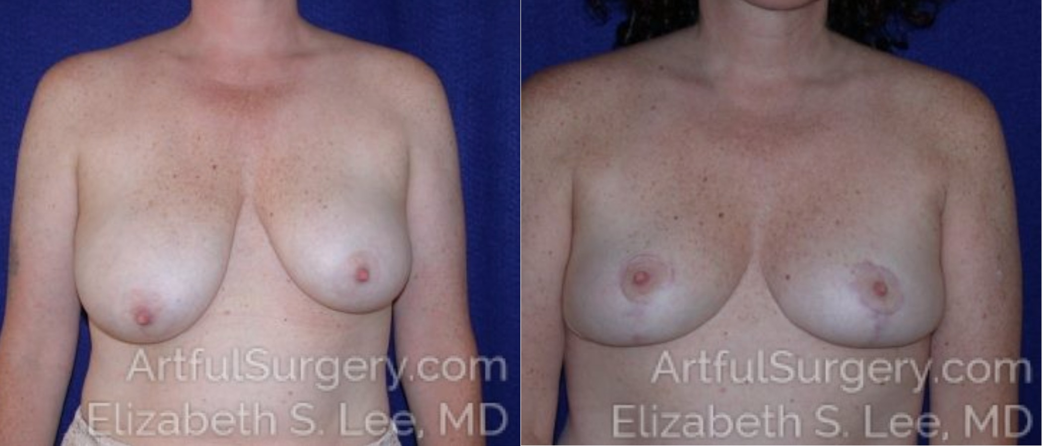Breast Lift Before & After Patient #1185