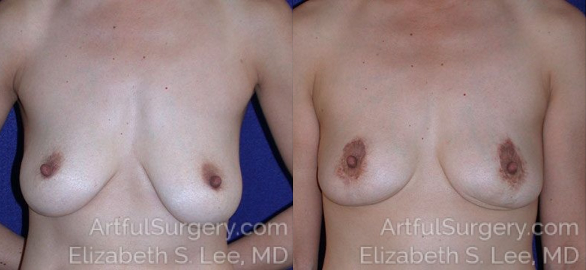 Breast Lift Before & After Patient #1195