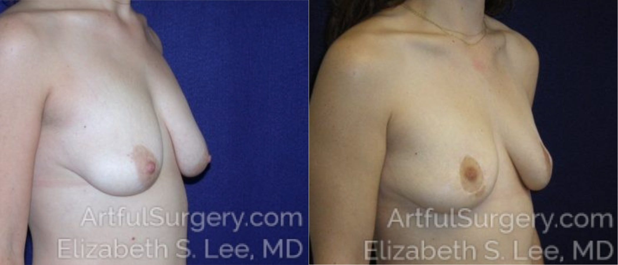 Breast Lift Before & After Patient #1210
