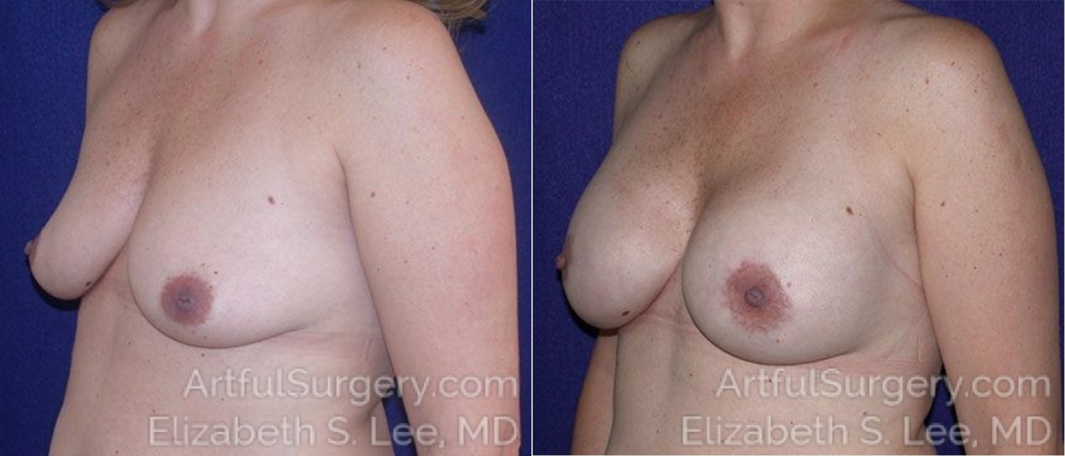 Breast Lift Before & After Patient #1220