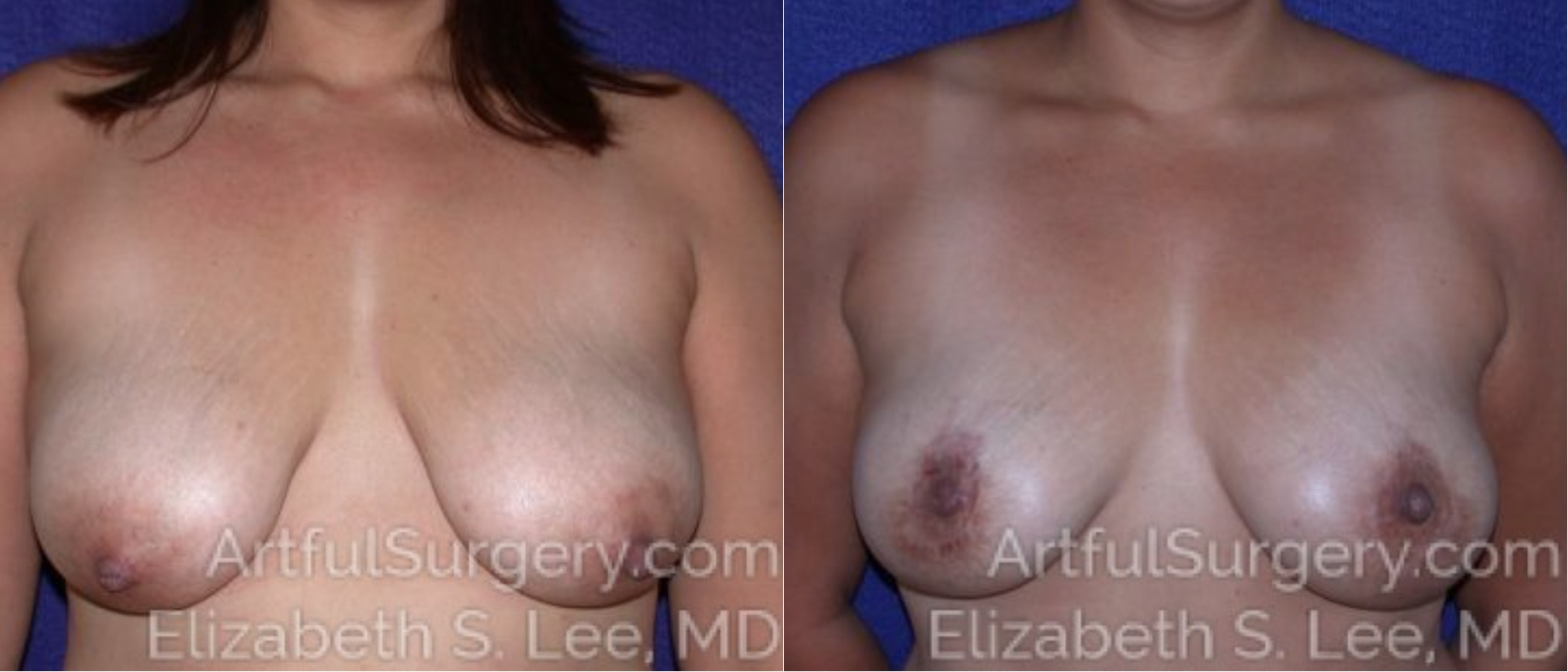 Breast Lift Before & After Patient #1240