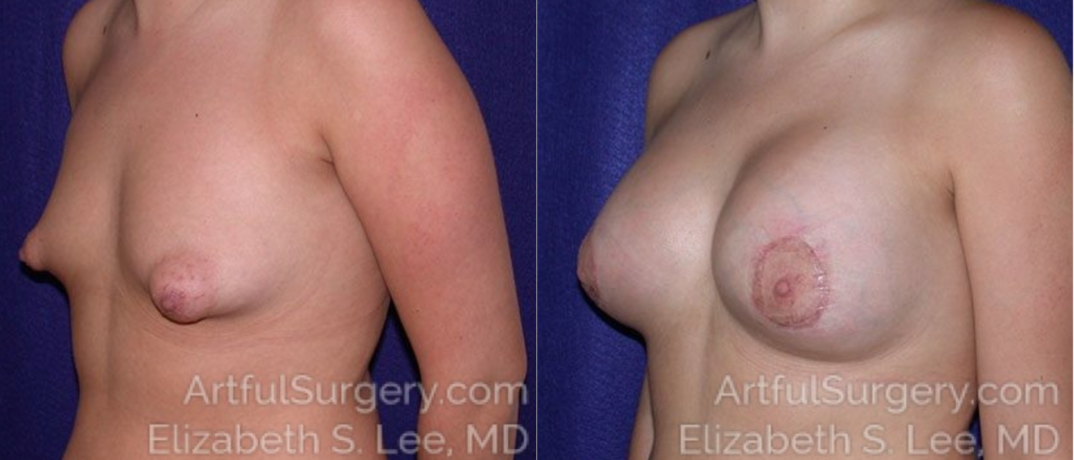 Breast Lift Before & After Patient #1225