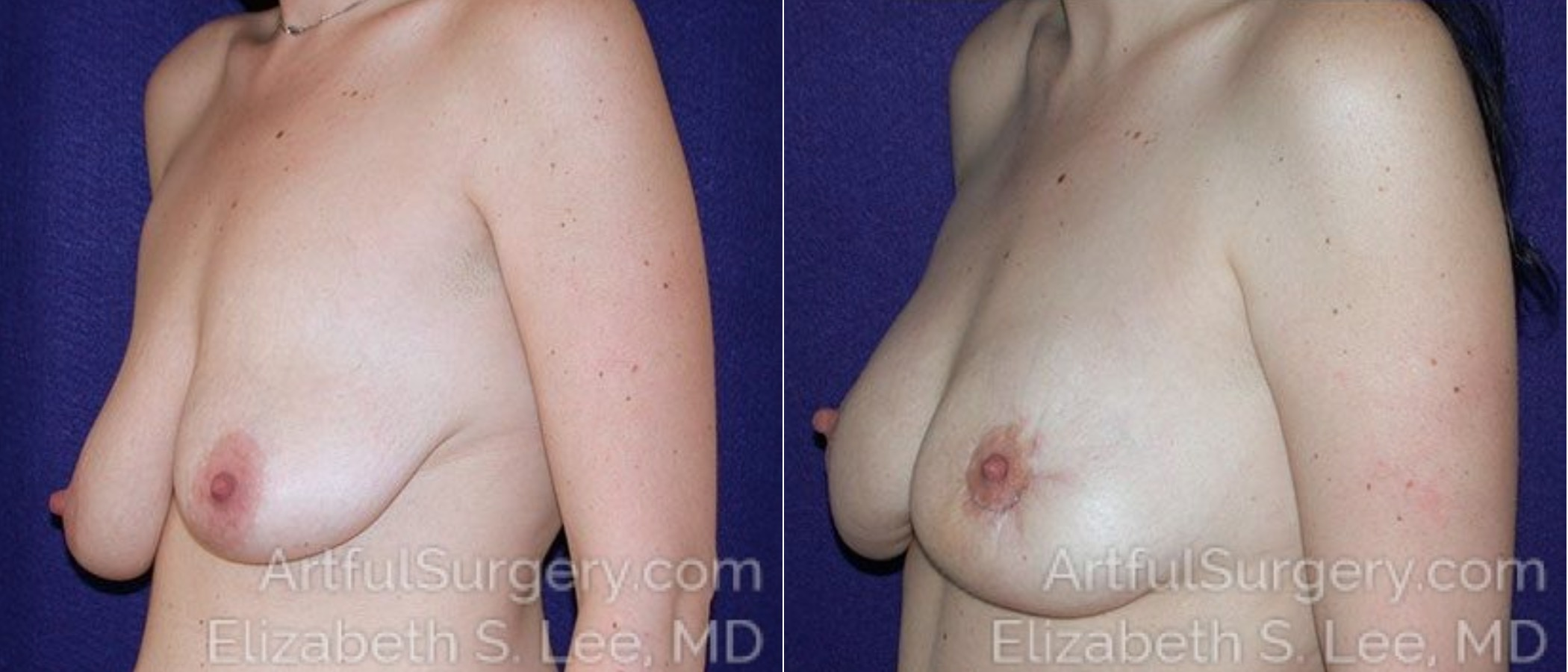 Breast Lift Before & After Patient #1230