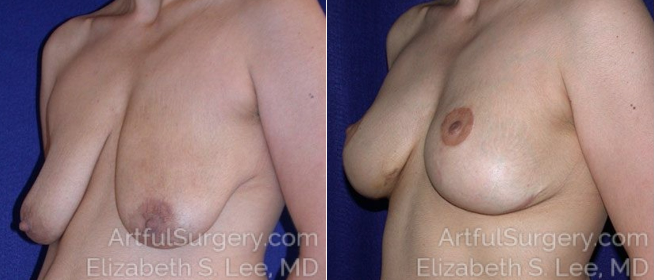 Breast Lift Before & After Patient #1215