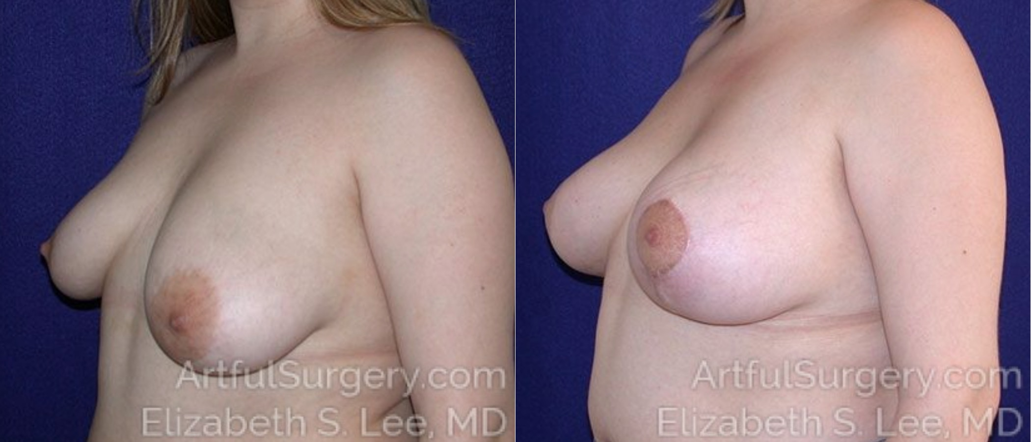 Breast Lift Before & After Patient #1200