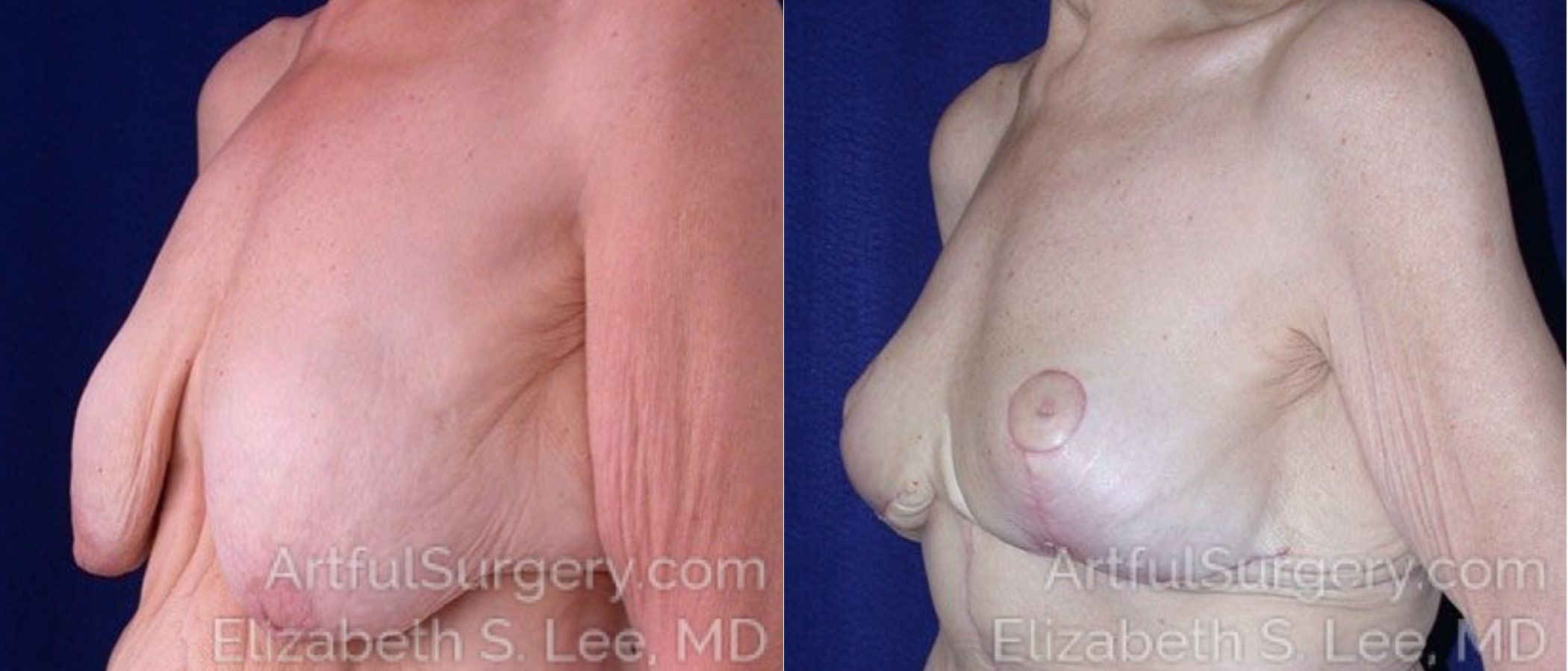 Breast Lift Before & After Patient #1190
