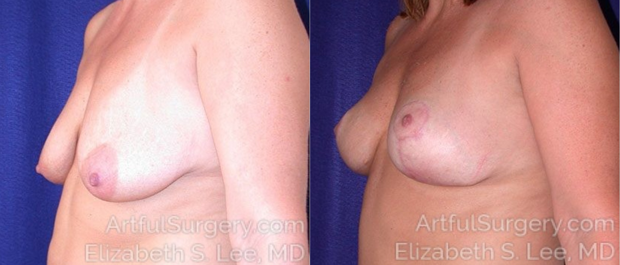 Breast Lift Before & After Patient #1205