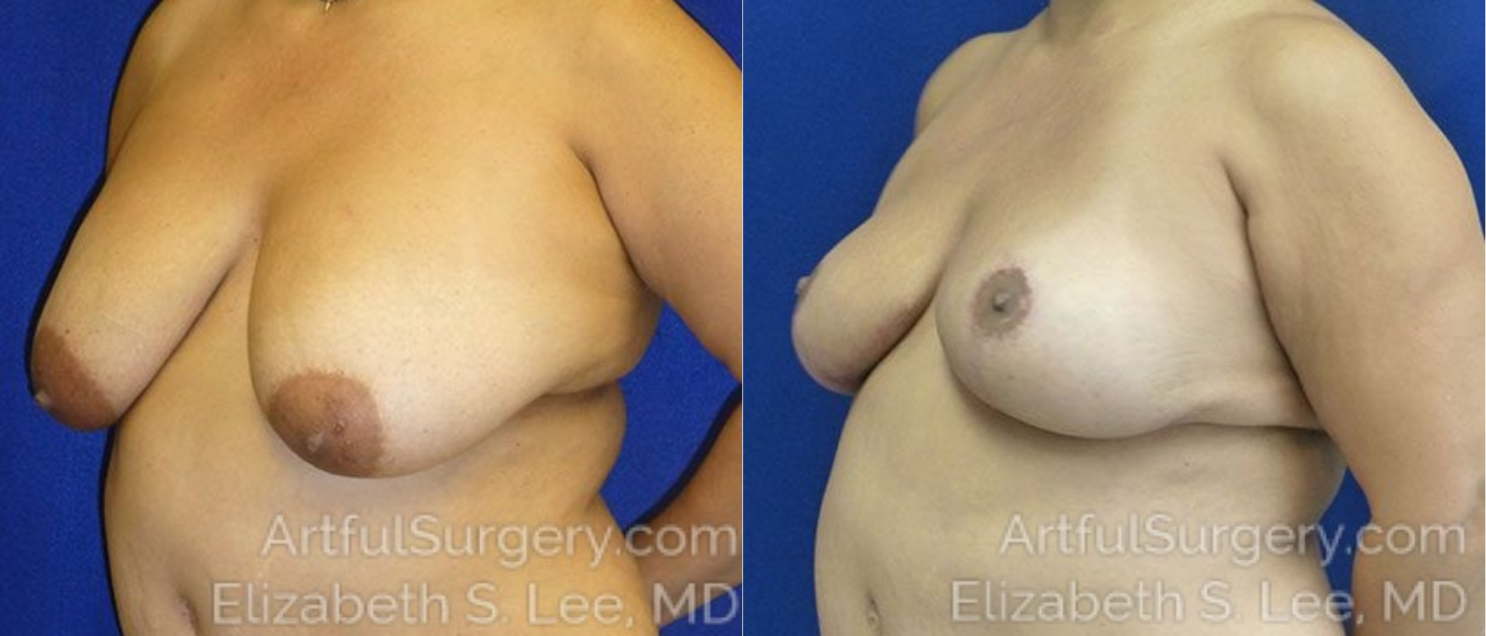 Breast Lift Before & After Patient #1272