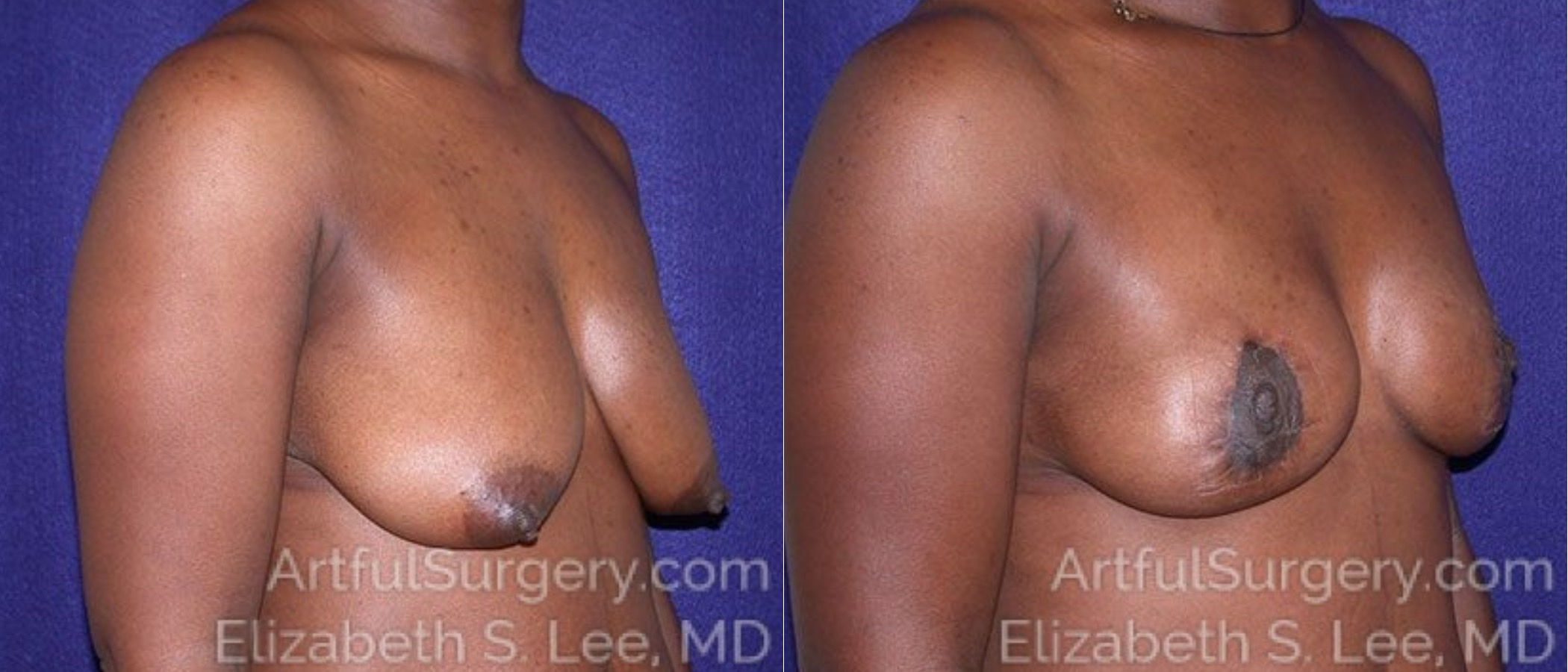 Breast Lift Before & After Patient #1235