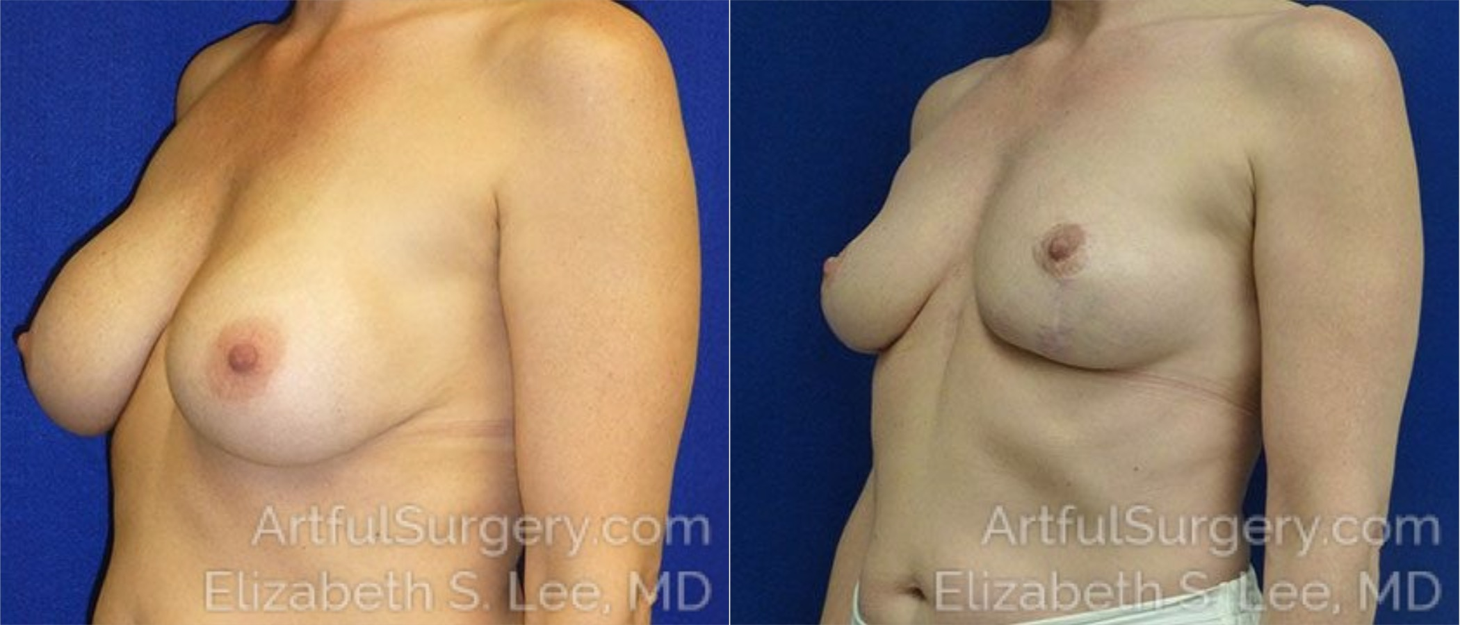 Breast Lift Before & After Patient #1287