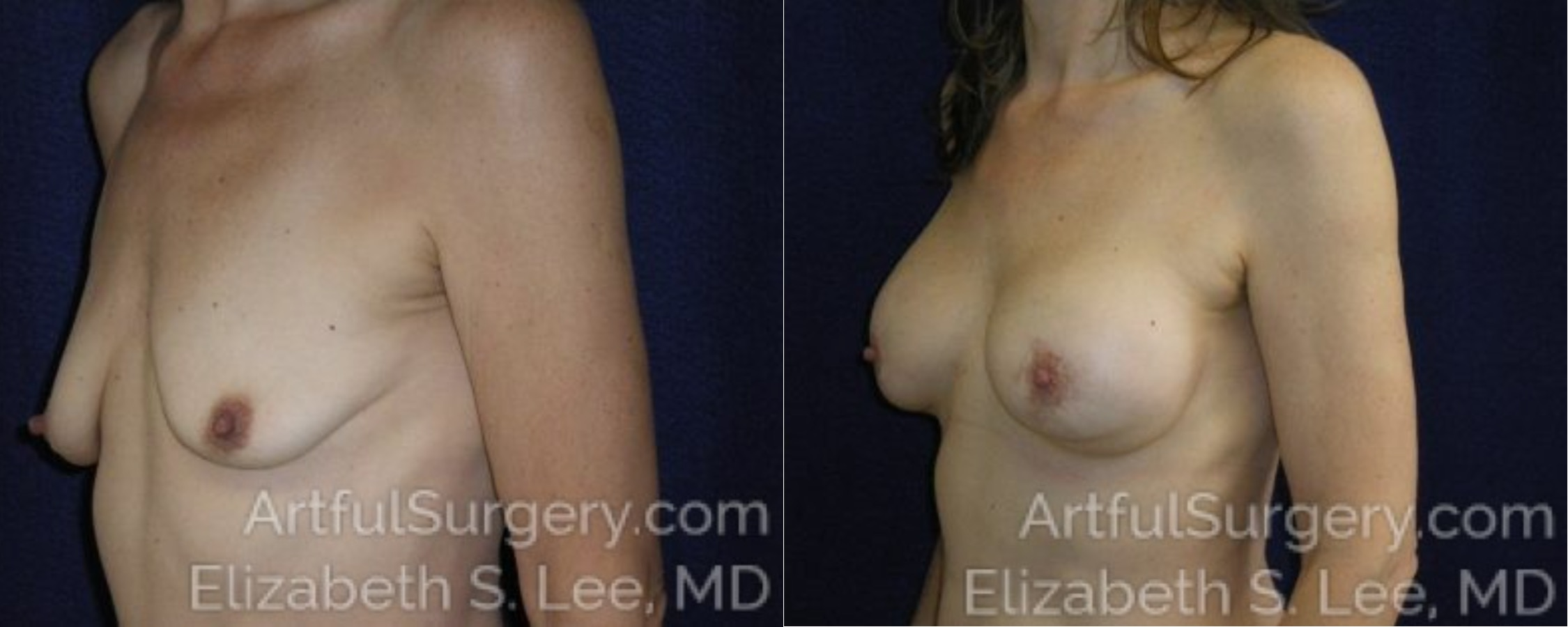 Breast Lift Before & After Patient #1245