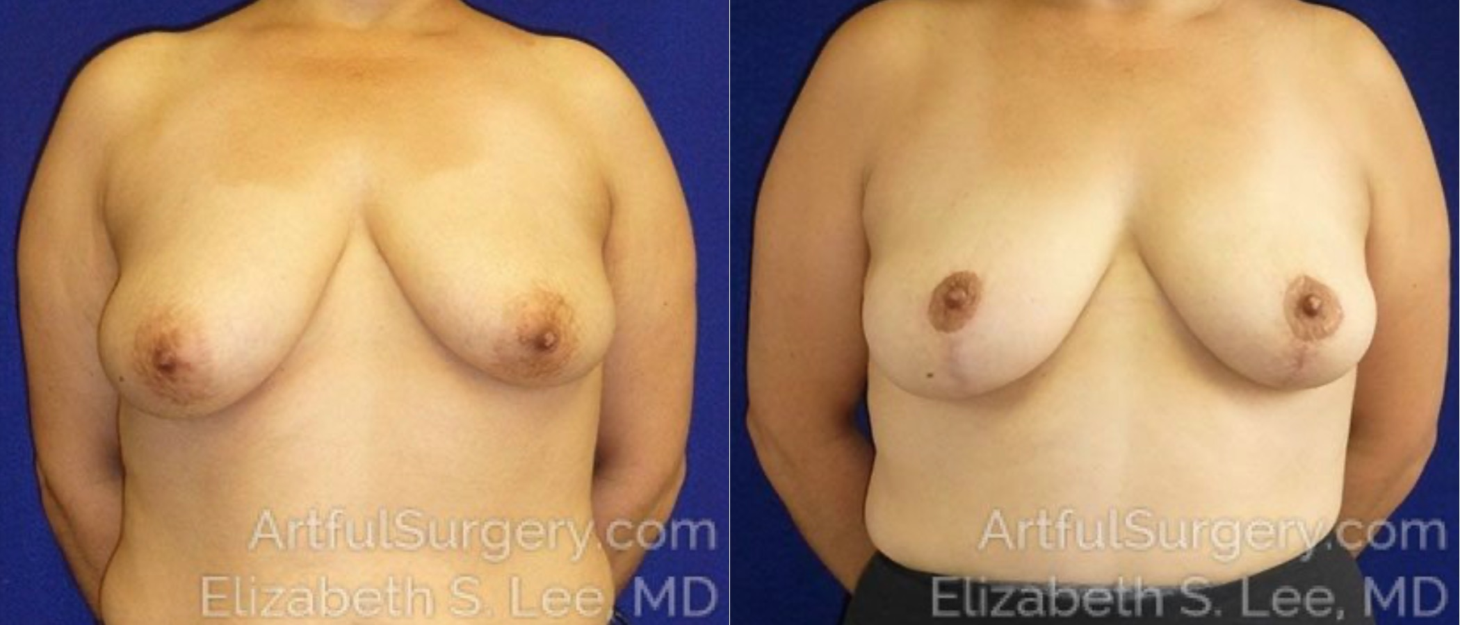 Breast Lift Before & After Patient #1282