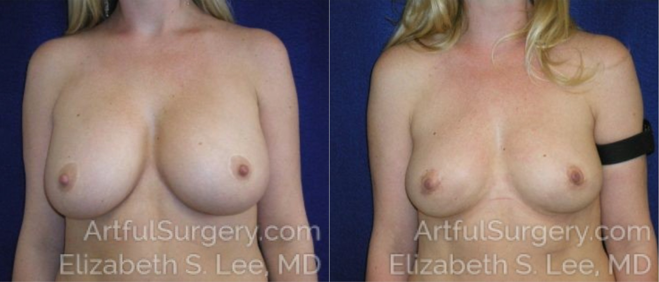 Breast Lift Before & After Patient #1250