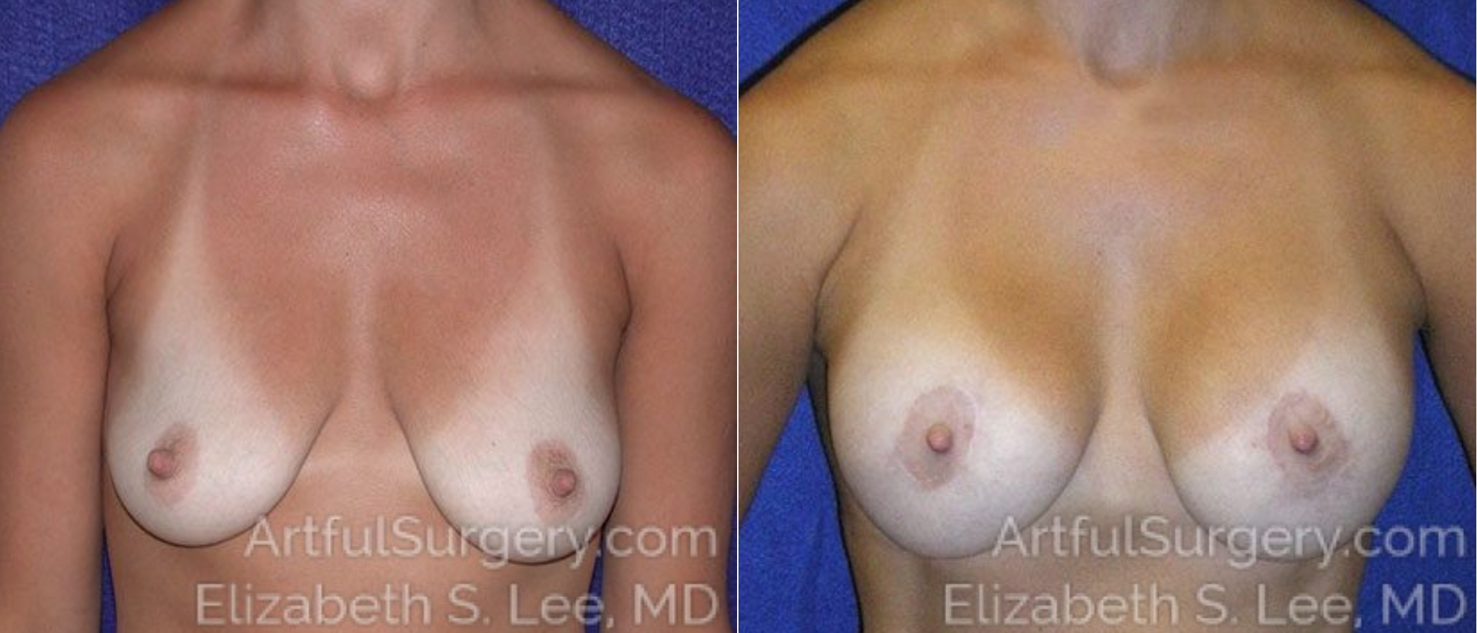 Breast Lift Before & After Patient #1262