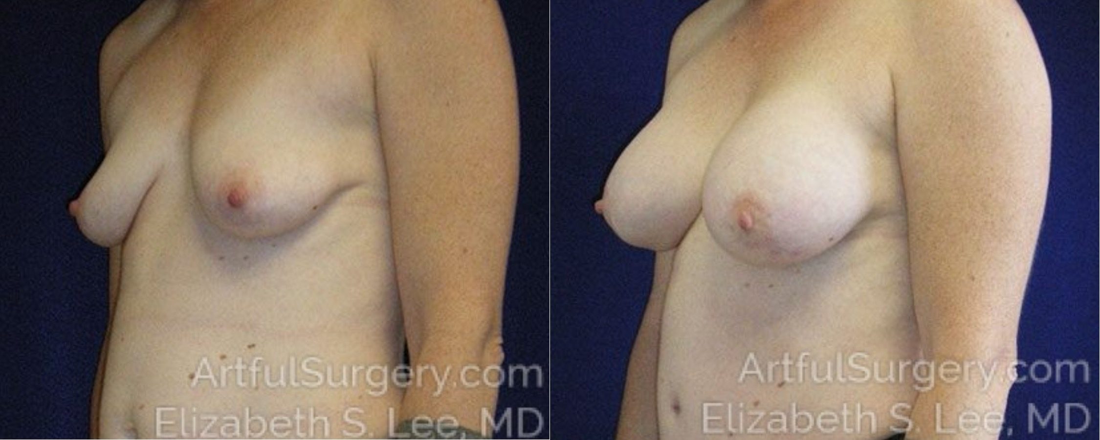 Breast Lift Before & After Patient #1267
