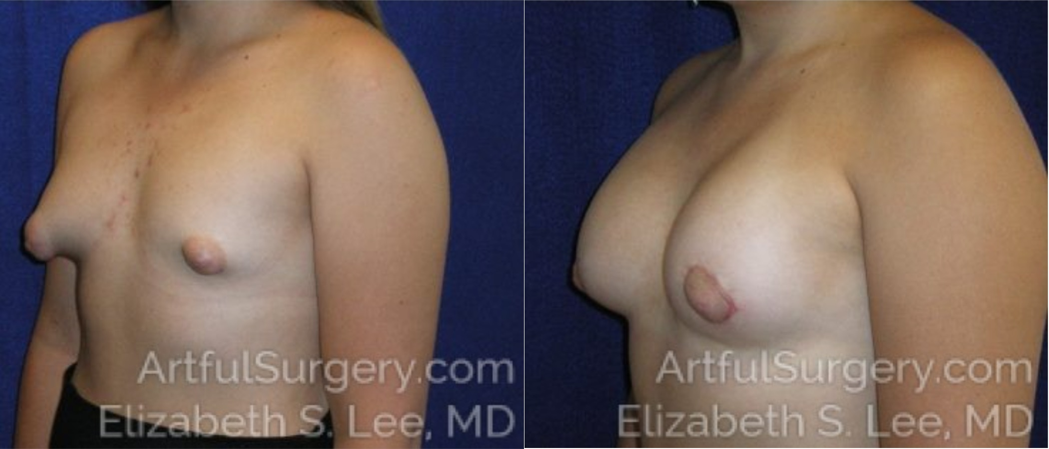 Breast Lift Before & After Patient #1256