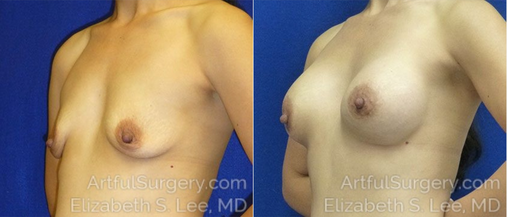 Breast Lift Before & After Patient #1292