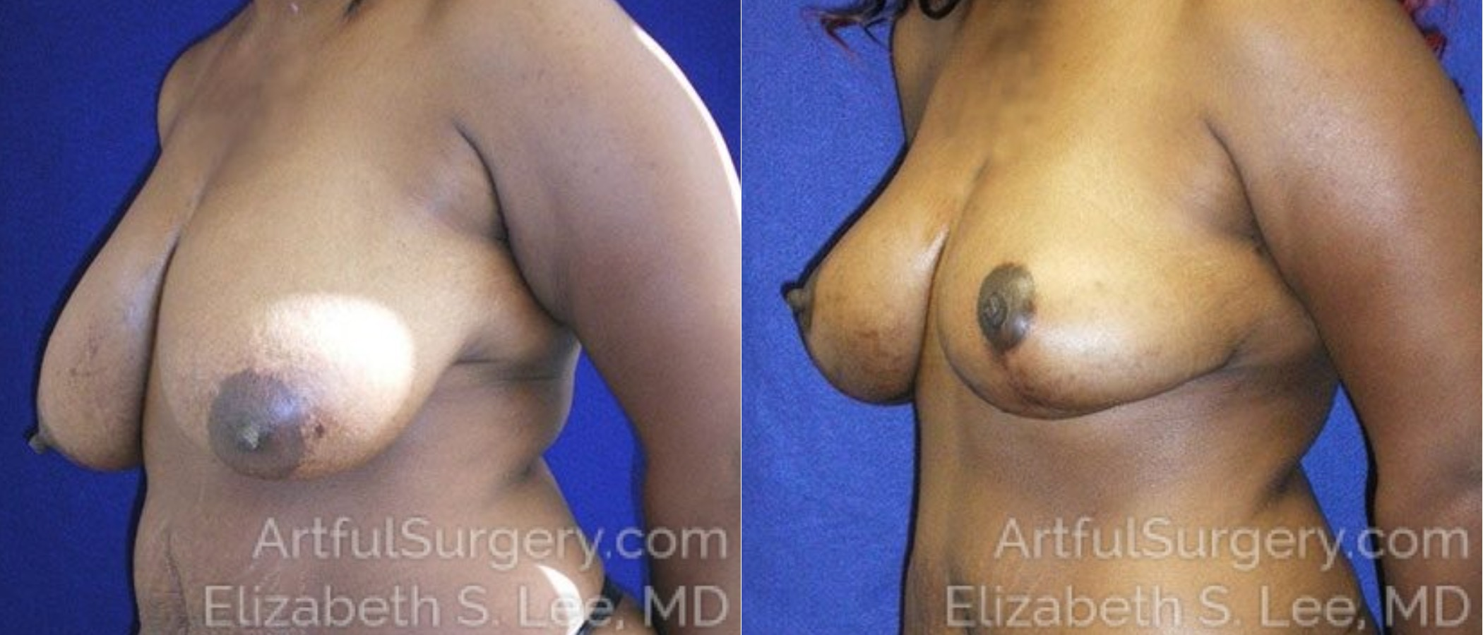 Breast Lift Before & After Patient #1277