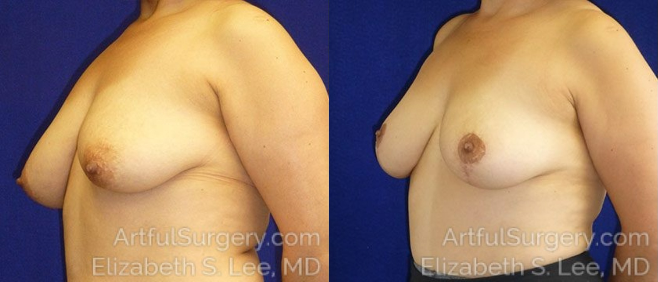 Breast Reduction Before & After Patient #2443