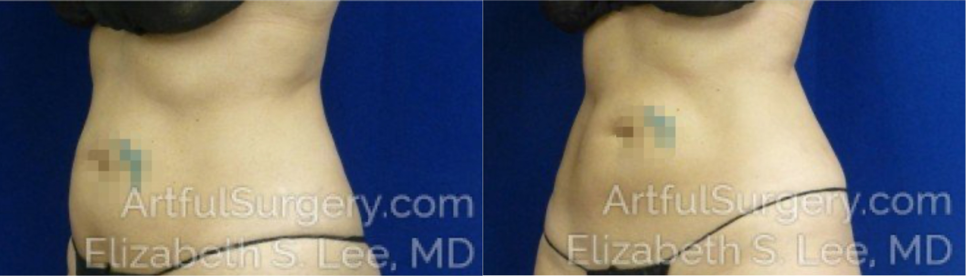 CoolSculpting Before & After Patient #2455