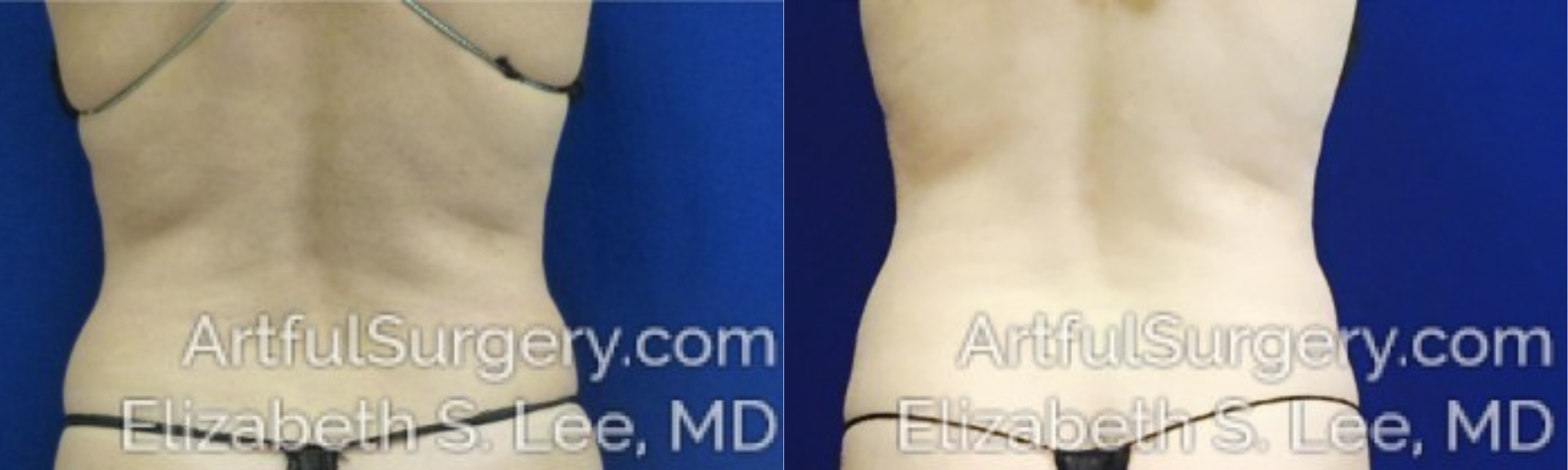 CoolSculpting Before & After Patient #2454