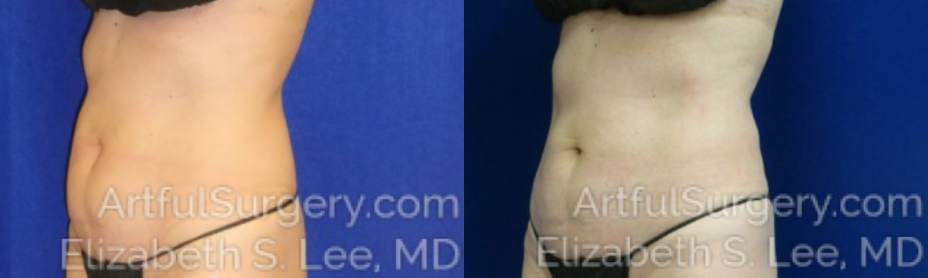 CoolSculpting Before & After Patient #9660