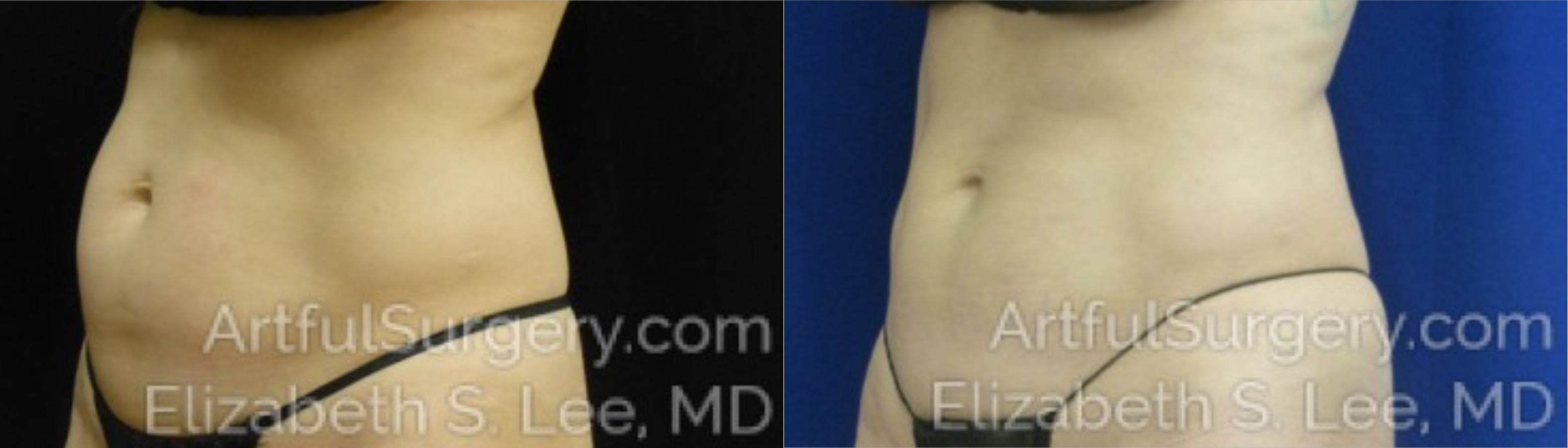 CoolSculpting Before & After Patient #9530