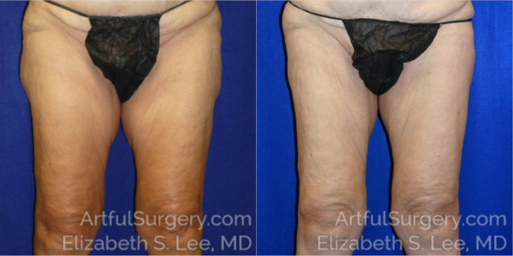 CoolSculpting Before & After Patient #3540