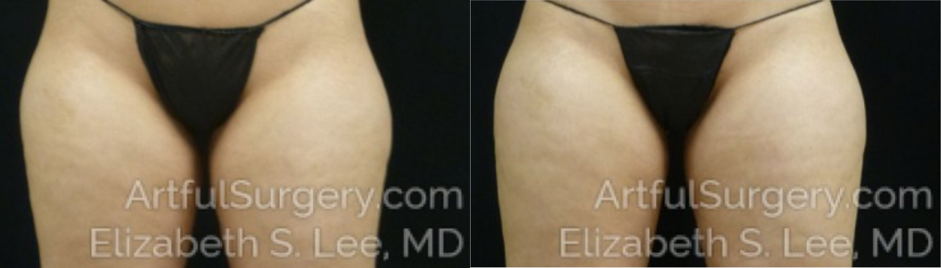 CoolSculpting Before & After Patient #9760