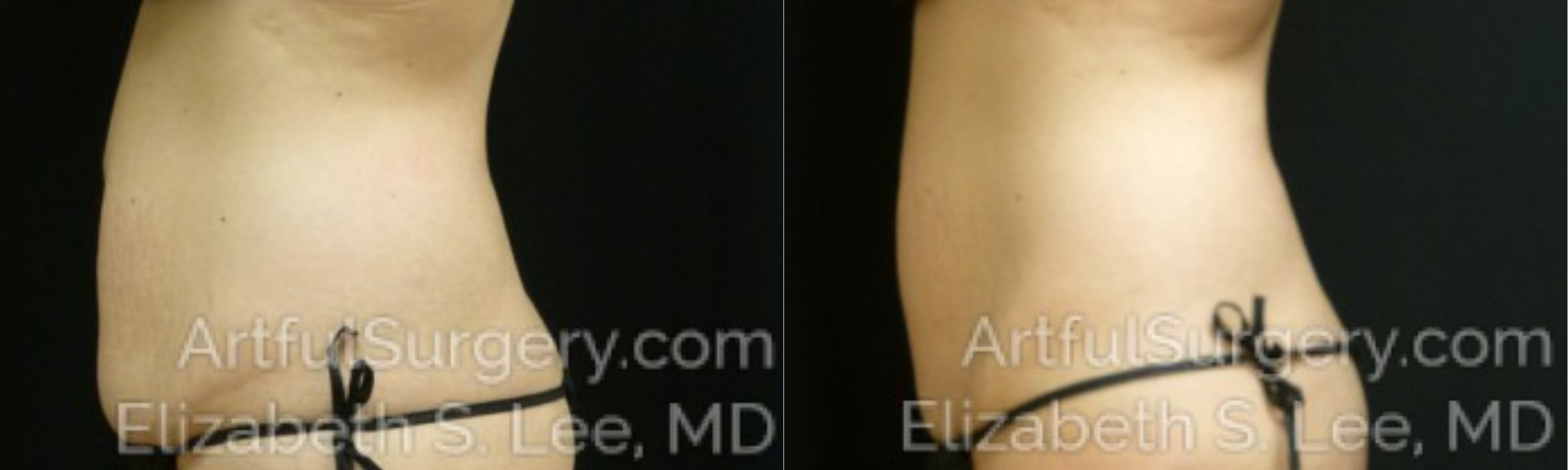 CoolSculpting Before & After Patient #9910