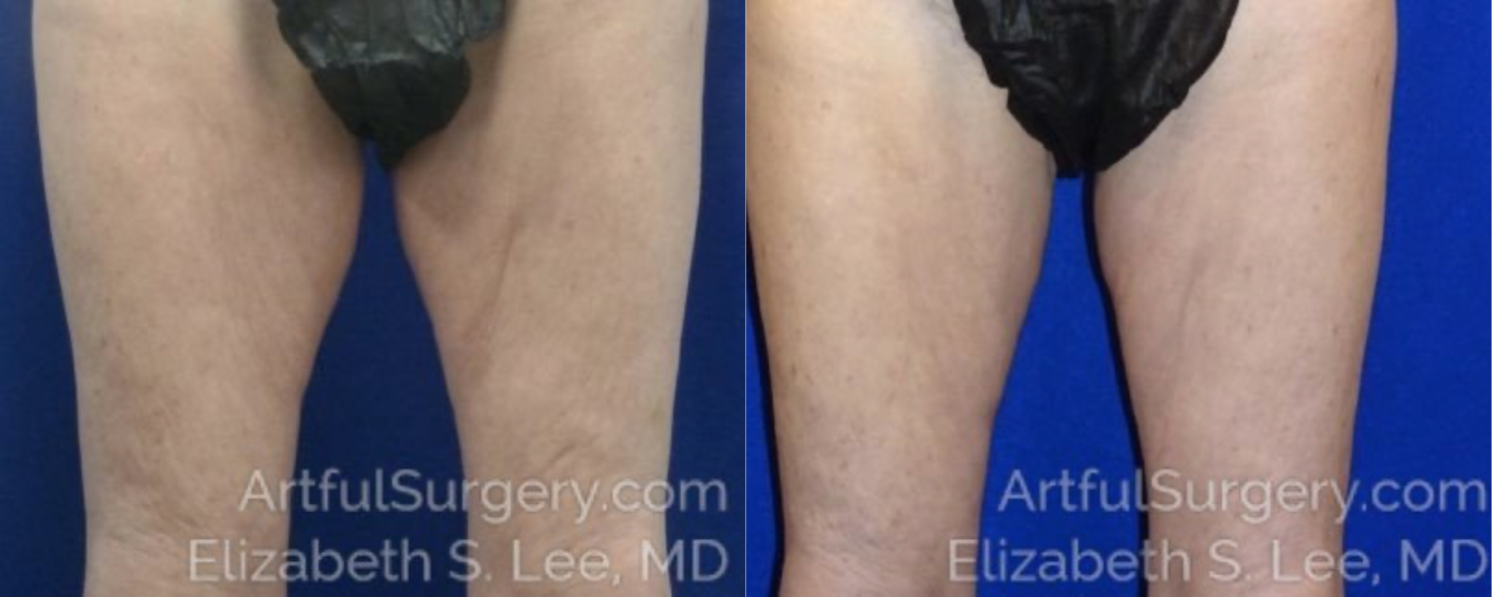 CoolSculpting Before & After Patient #3535