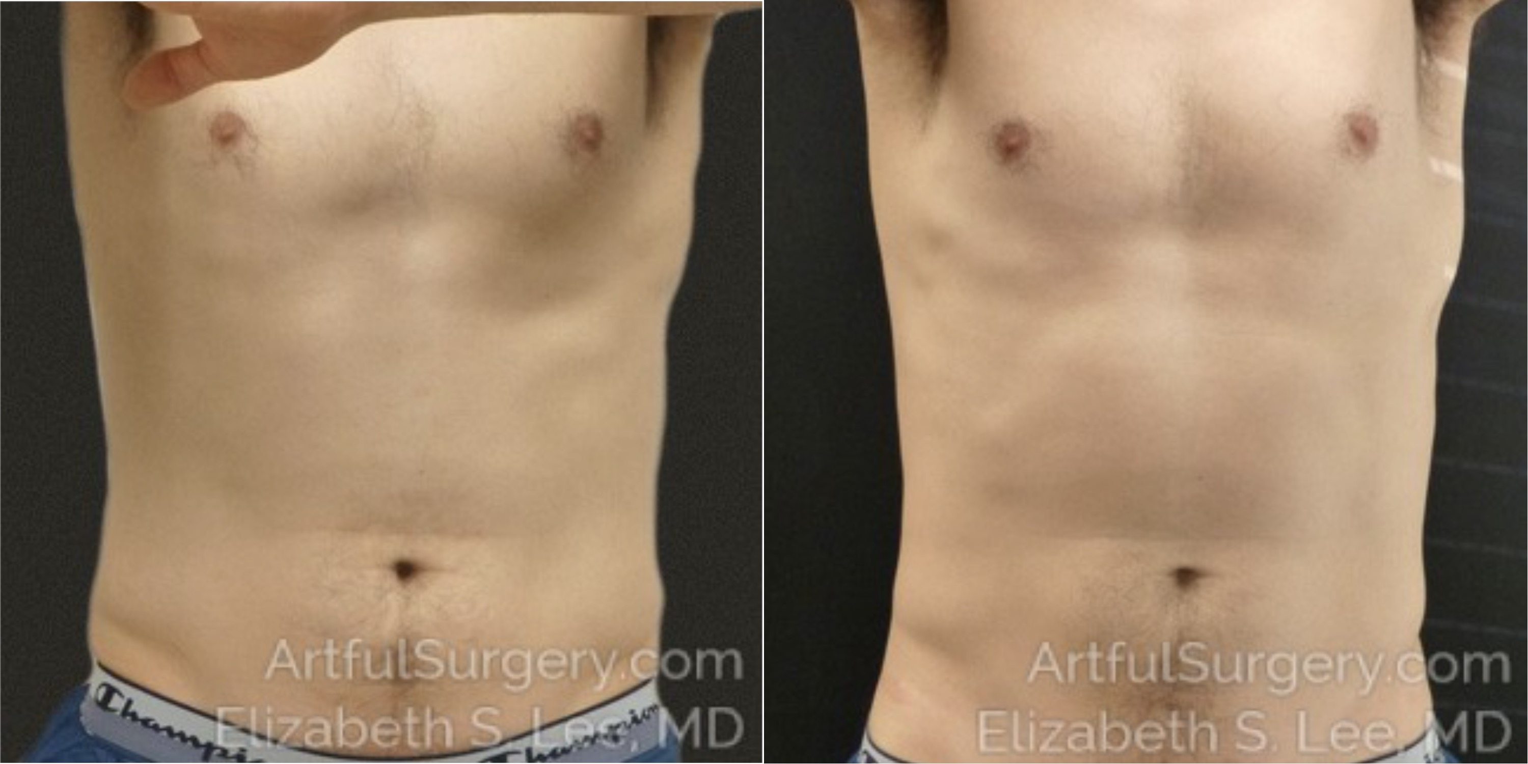 CoolSculpting Before & After Patient #9810
