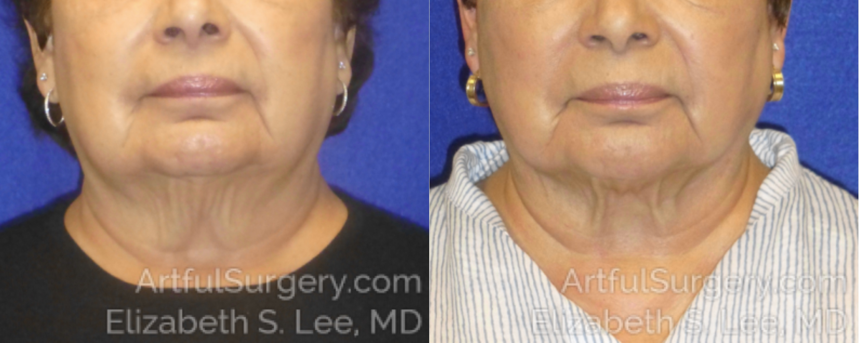 CoolSculpting Before & After Patient #2589