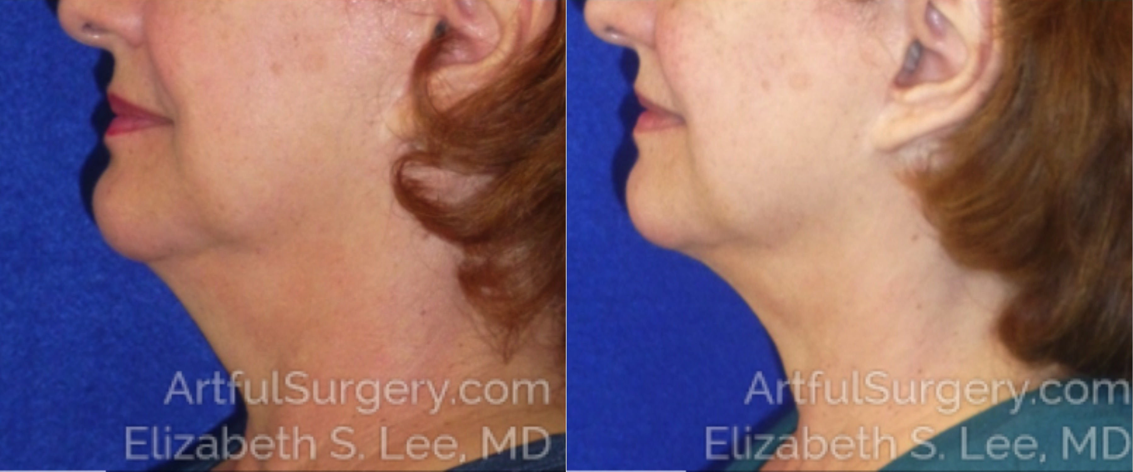 CoolSculpting Before & After Patient #2594